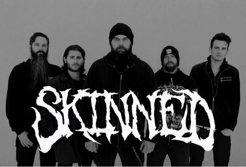 skinnedlive2018
